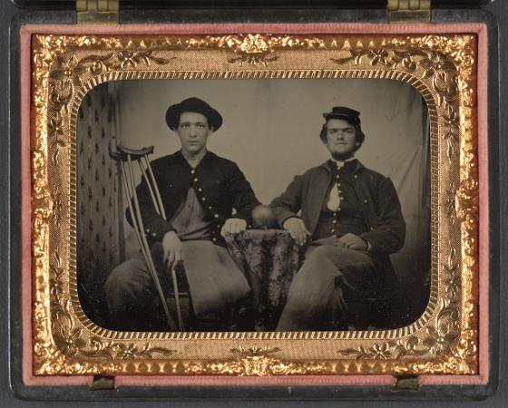 Union Soldiers with Amputations